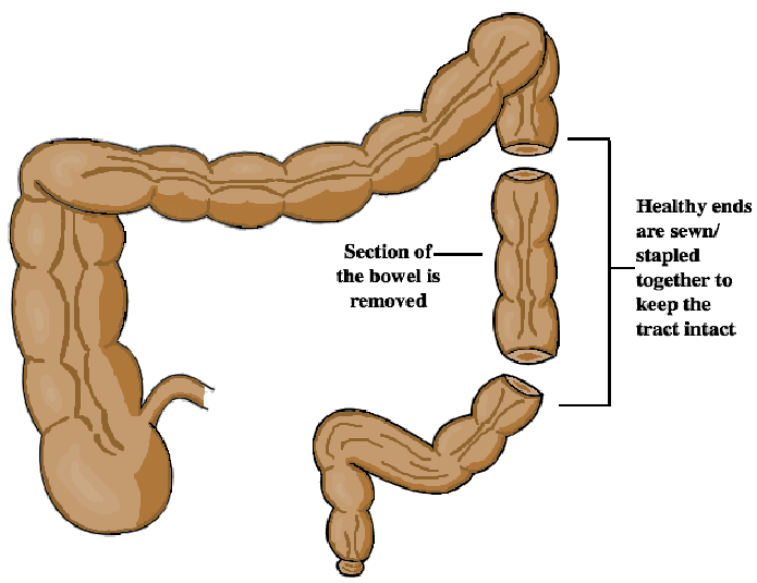 Bowel Resection Diagram