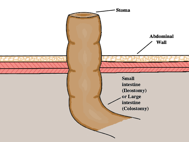 Ileostomy_Colostomy Diagram